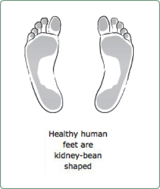 Healthy feet have strong arches