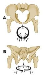 pubic-symphysis-1