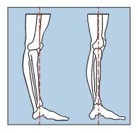 9-hyper-extended-knee